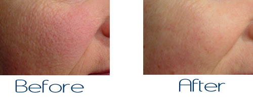 Tips For Treating Large Pores Cosmetic Dermatology Manhattan
