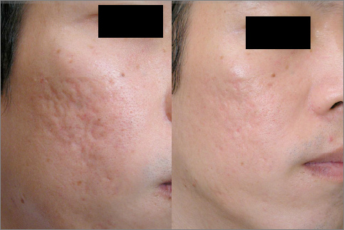 Acne Scar Before and After