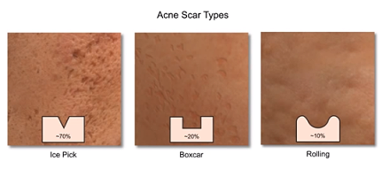 Dermal Fillers for Acne Scarring | Cosmetic Dermatology