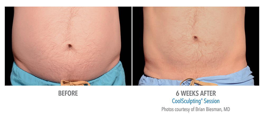 Redondo Beach CoolSculpting Before and After