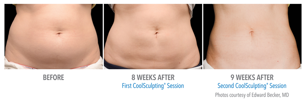 CoolSculpting Manhattan Beach Before and After photos